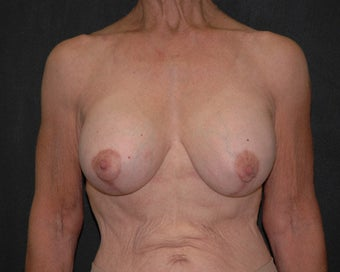 breast lift after 334100