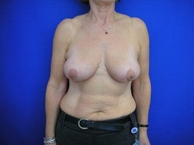 Breast Reduction after 606415