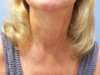 Neck lift after 591055