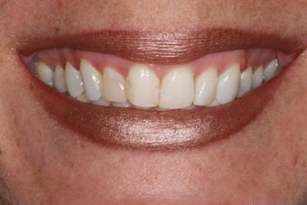 Minimal Prep Veneers/ Gum LIft before 194542