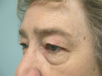 Upper and Lower Lid Blepharoplasty and Cheeklift before 148580