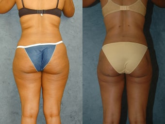 Liposuction of Abdomen, Flanks, and Thighs before 55861