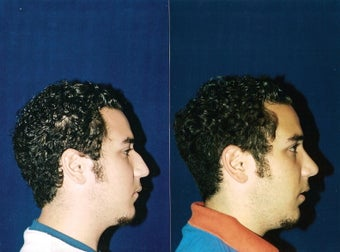 Rhinoplasty and Septoplasty after 241686