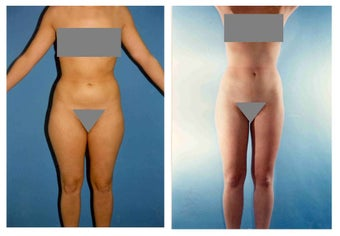 Liposuction before 636295