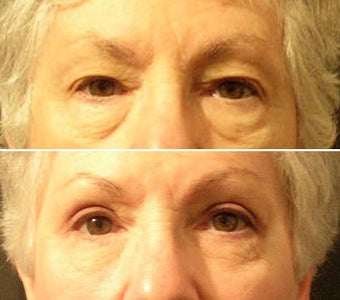 Eyelid surgery before 214838