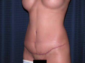 Abdominoplasty after 300336