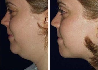 Liposuction of Chin before 6801