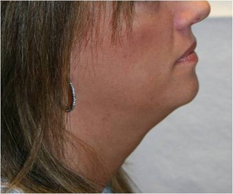 SmartLipo of Neck - Right Lateral View  after 109277