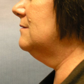 chin liposuction before 408393