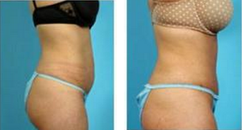Tummy Tuck (Abdominoplasty) 324843