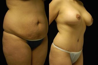 Tummy Tuck and Breast Augmentation- gel implants after 392664