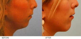 Chin Implant before 216349