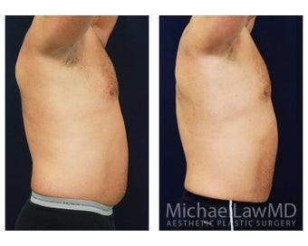 Liposuction 495045