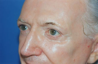 Laser Skin Resurfacing with Dr. Clevens after 555842