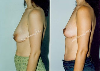 Mastopexy-Breast Lift before 243720