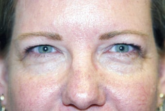 Blepharoplasty before 480514