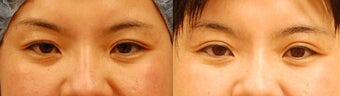 Asian Eyelid Surgery before 489331