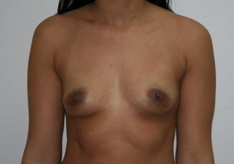 Breast augmentation before 88869