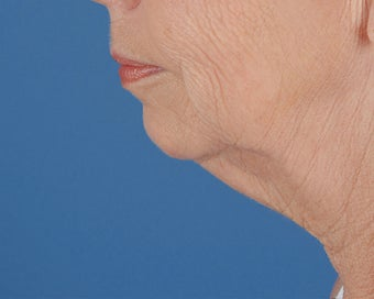 Chin Implant before 504101