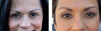 Botox & Juvederm before 561082