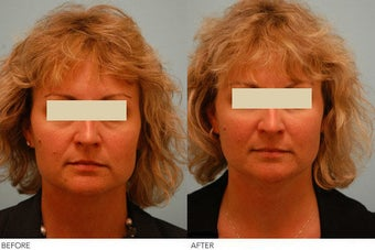 Injectable Fillers (Restylane/Perlane) before 136769