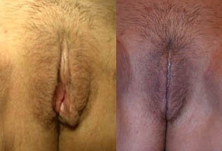 Before & After Labiaplasty Surgery (labia minora reduction)  before 159555