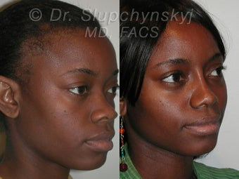 African American Rhinoplasty after 565837