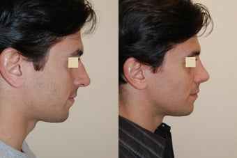 Rhinoplasty, 6 weeks post op.  before 150798