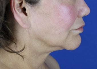 Facelift, Neck Lift, Lipocontouring of Neck before 414152