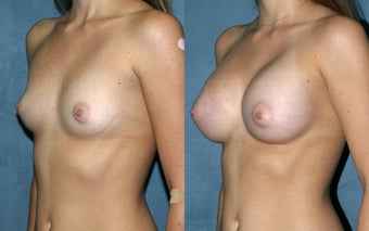 Breast Augmentation - Silicone after 125315