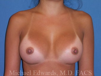 Breast Augmentation after 88117