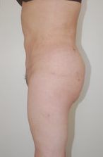 Butt Augmentation after 333881