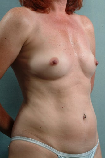 Breast Augmentation  before 240358