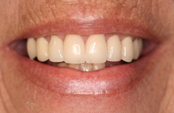 Full Porcelain Crowns after 145686