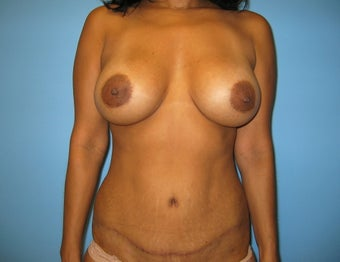 mommy makeover (breast augmentation and tummy tuck) after 284068