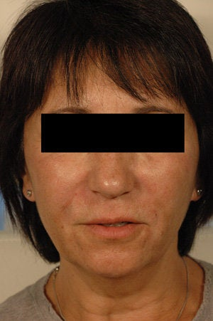 Juvederm for laugh lines after 199421