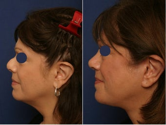 Revision rhinoplasty before and after before 78517