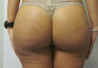 Brazilian Butt Lift  after 588366