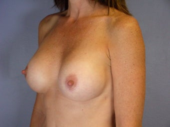 Breast Revision after 307232