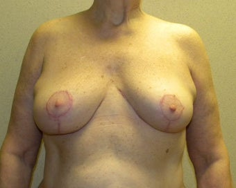 Breast Lift after 411125