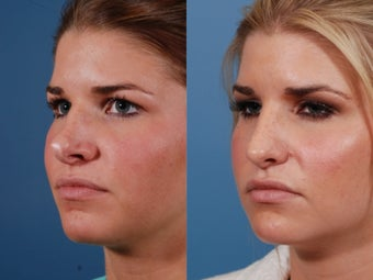 Revision rhinoplasty 395562