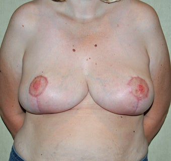 Breast Reduction after 521074