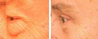 Blepharoplasty before 69349