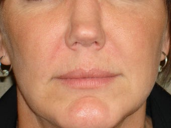 Treatment of prominent nasolabial folds with a dermal filler after 377062