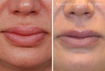 Lip Reduction and Repair before 485284