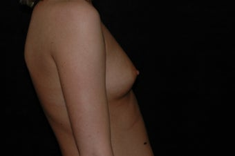 Breast Augmentation 336398