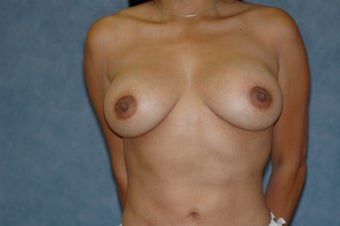 Breast augmentation with lift after 399917