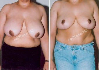 Breast Reduction before 243739