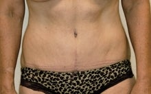 Tummy Tuck (Lipo Abdominoplasty) after 244000