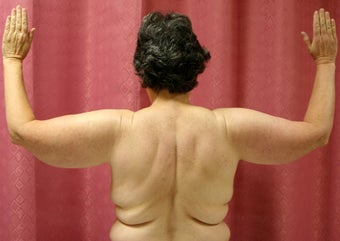 Brachioplasty or arm tuck in los angeles before 583674